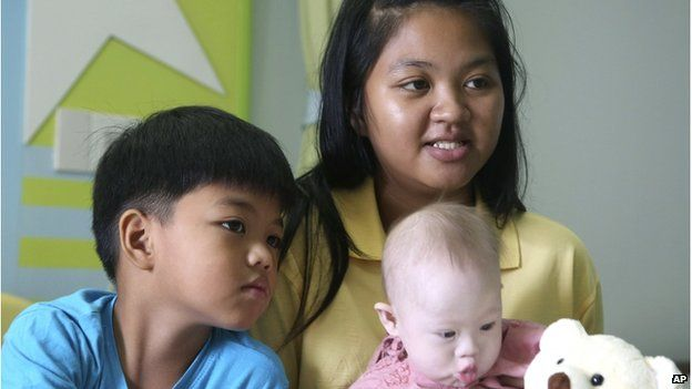 Pattaramon Chanbua, 21, top, poses with her children Game, 7, left, and baby boy Gammy at a hospital in Chonburi province, southeastern Thailand Sunday, 3 Aug 2014.