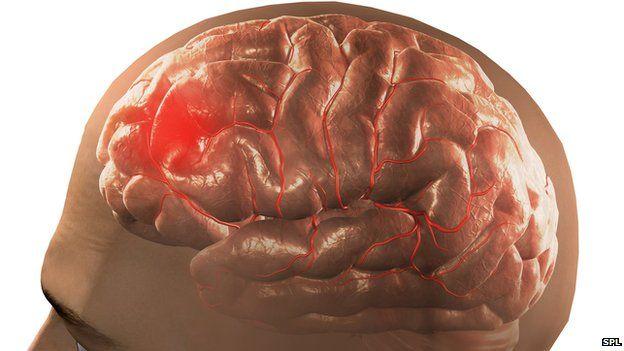A blood clot on the brain