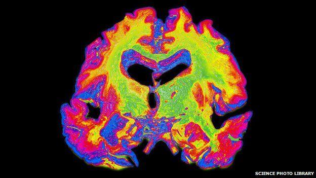 Brain with severe Alzheimer's disease