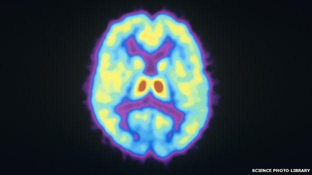 Opioid receptors in the brain