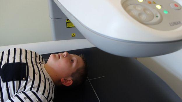 Boy lying down under a scanner
