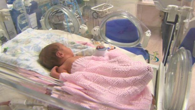 Baby at Barnsley Hospital Special Care Baby Unit