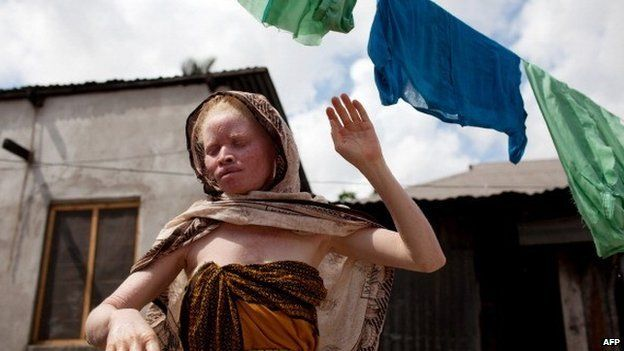 A Tanzanian albino hangs clothes to dry in front of her home in Dar es Salaam on 3 November 2010
