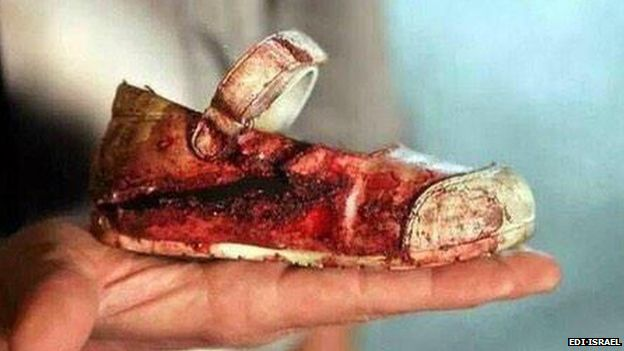 bloody shoe