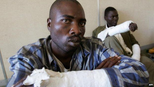 Two members of the Movement for Democratic Change (MDC) in Zimbabwe who say they were assaulted by members of the ruling party in Masvingo, south of Harare (3 May 2008)