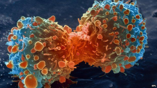 Most cancer types 'just bad luck' - BBC News