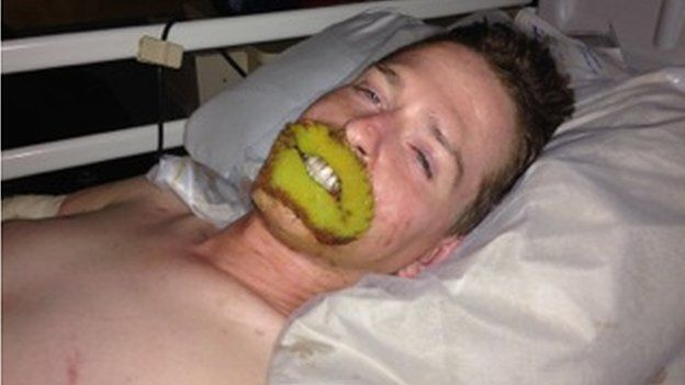 Alex in hospital with a green gauze over his lips