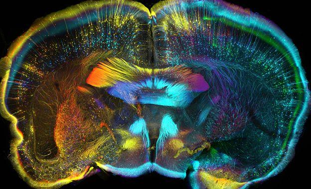 Mouse brain - Luis de la Torre-Ubieta