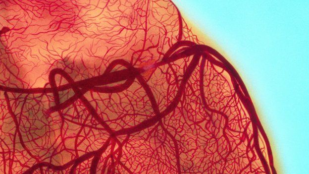 angiogram showing an obstructed coronary artery