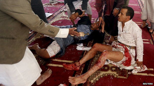 Wounded worshippers after suicide bombing at a mosque in Sanaa (20 March 2015)