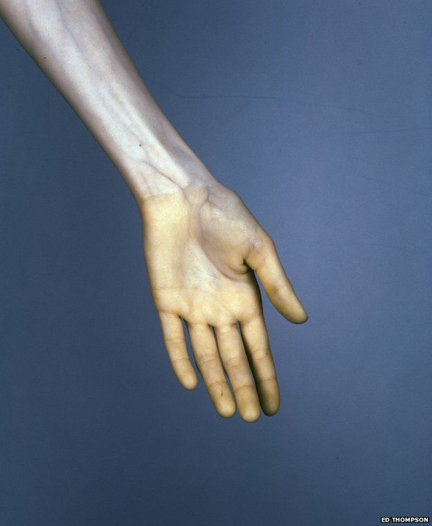 The Vein, Hand