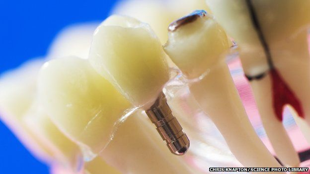 A dental implant replaces a natural tooth root