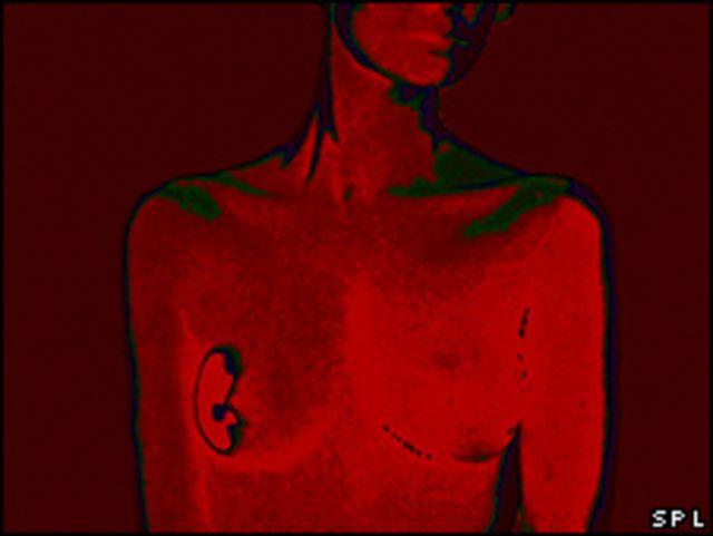 Resonancia magnética de una mujer con cáncer de mama