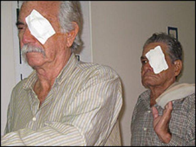 Operados de la vista