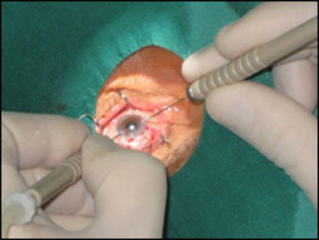 Cirujía de ojos