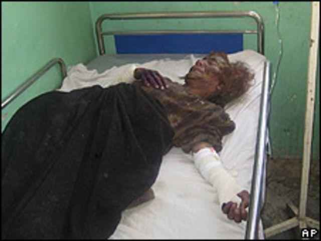 Civil herido en un hospital de Farah, 5 mayo 2009