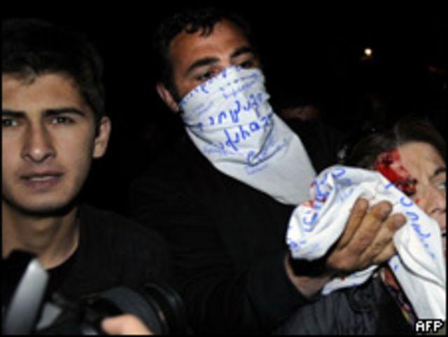 Manifestante herida en Tiflis, capital de Georgia