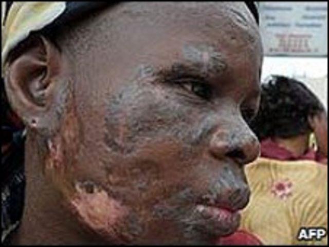Una mujer en Abidjan con lesiones en su rostro