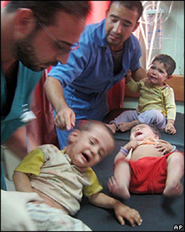 Médicos atienden a niños heridos en la explosión