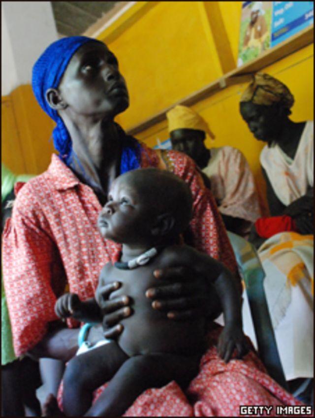 سيدة تحمل ابنها الذي يعاني من سوء التغذية في جنوب السودان