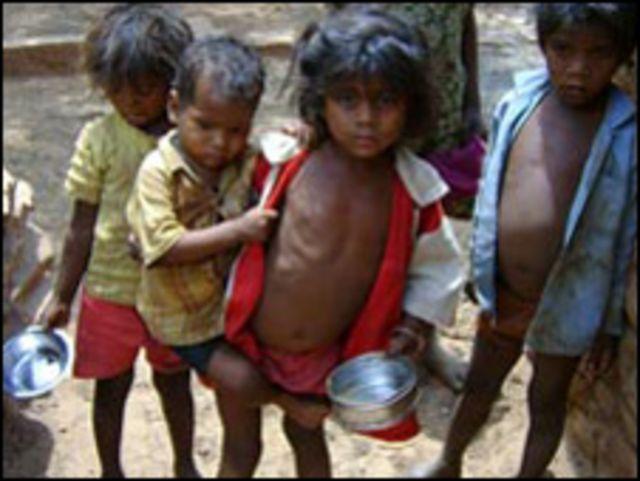 اطفال يعانون من سوء التغذية