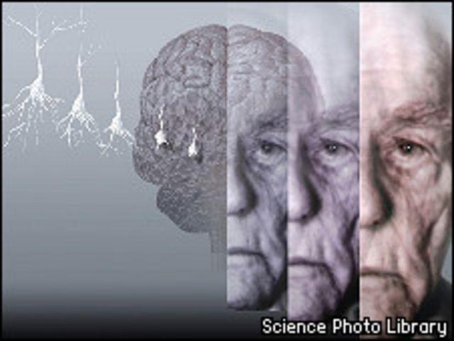 Rostro de anciano, cerebro y neurona.