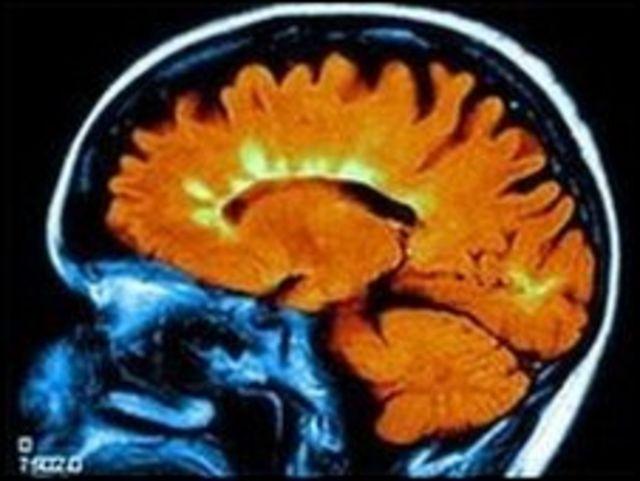 صورة مقطعية لمخ مريض بالتصلب المتعدد