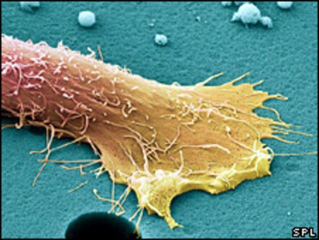 خلية سرطان البروستات