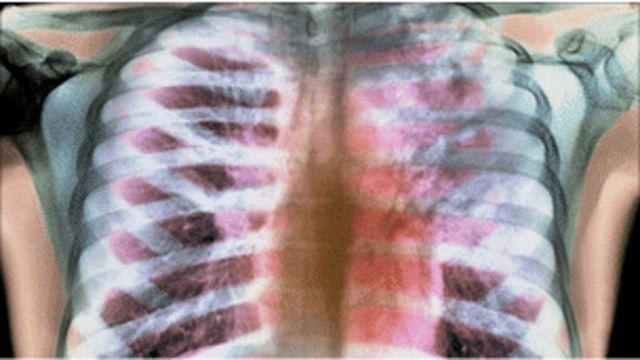 肺X-光片