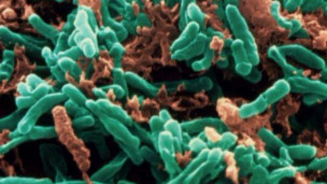 Des bactéries de la tuberculose pourraient être vite détectées ...