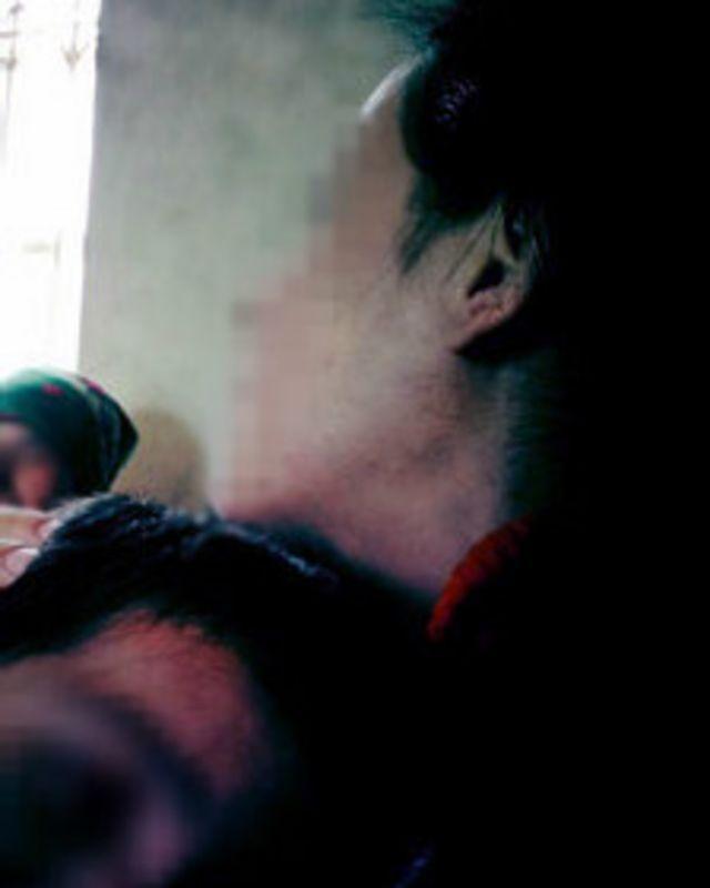 Ғайриихтиёрий стерилизация қурбони бўлган аёллар ҳам ўз исми-шарифлари ошкор этилишидан қўрқадилар.