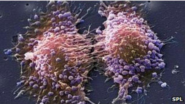 Клетки рака простаты