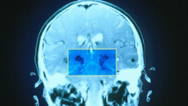 Escáner del cerebro de una persona con la enfermedad de Parkinson