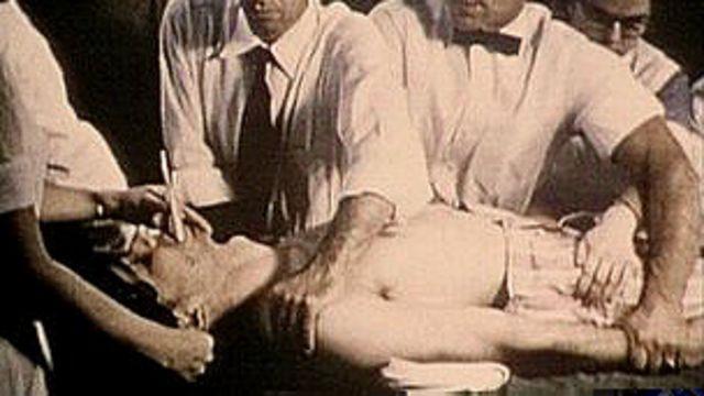 Paciente sometido a un electrochoque.