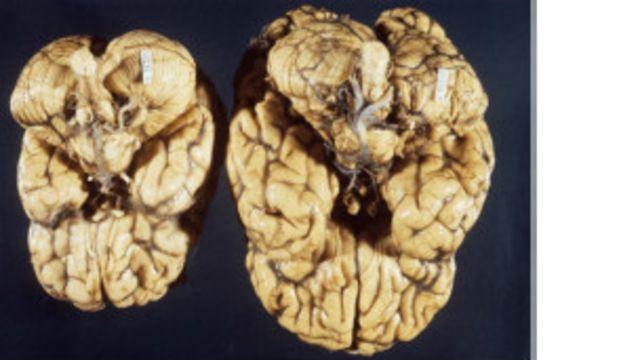 Cerebro microcefálico