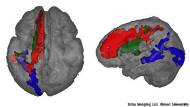 Scan mostra que o lado esquerdo do cérebro tem mais mielina