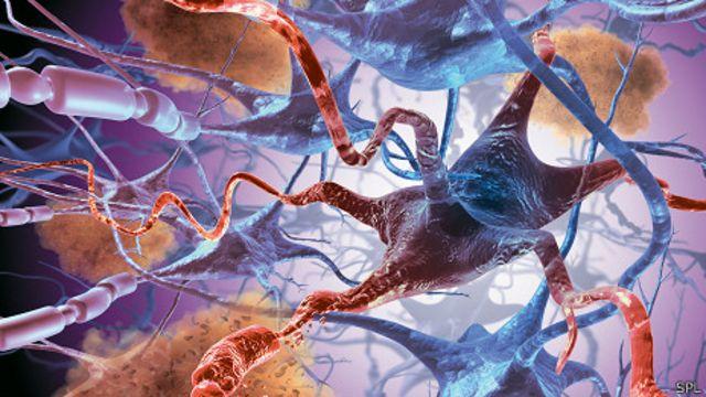 Apoptosis neuronal en la enfermedad de Alzheimer.