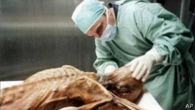 Corpo de Ötzi é analisado por cientista