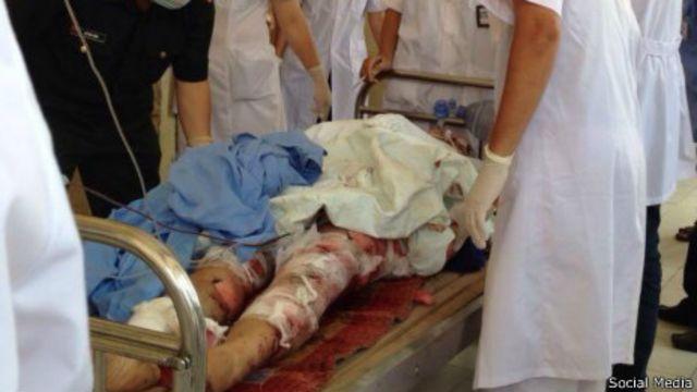 Nhiều người được đưa vào bệnh viện trong tình trạng bị thương nặng