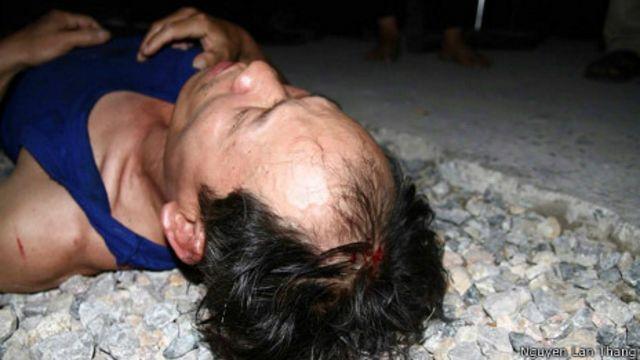 Ông Dũng từng bị đánh chảy máu đầu khi biểu tình chống Trung Quốc hồi tháng 6