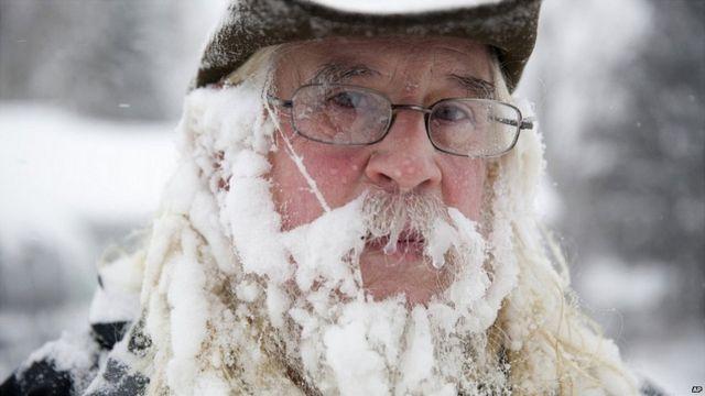 Hombre con la cara parcialmente congelada