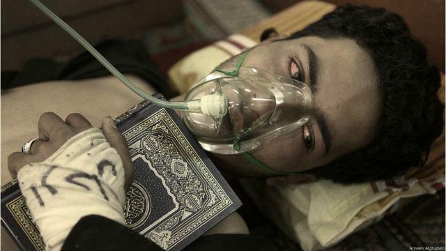 """متظاهر يعاني من صعوبة في التنفس بسبب الغازات المسيله للدموع التي تعرض لها يوم """"جمعة الكرامة"""" 18 مارس 2011 - أمين الغابري"""