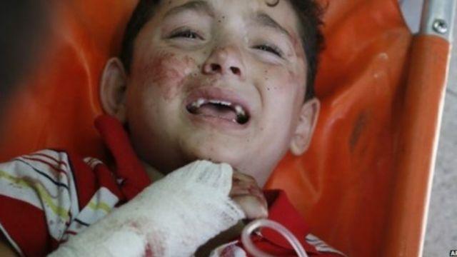 معظم ضحايا العملية العسكرية في غزة من الأطفال، بحسب الامم المتحدة.