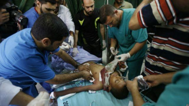 معظم الضحايا في غزة من المدنيين.