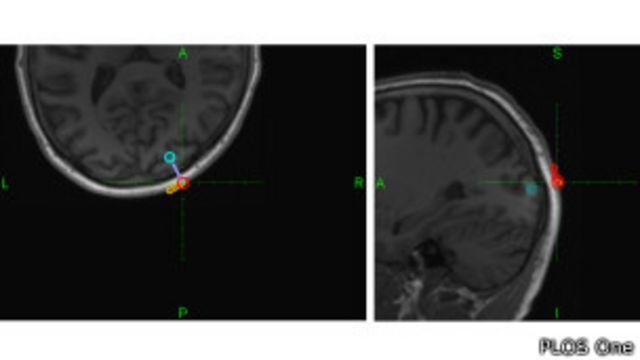 Imagen del cerebro durante experimento de telepatía
