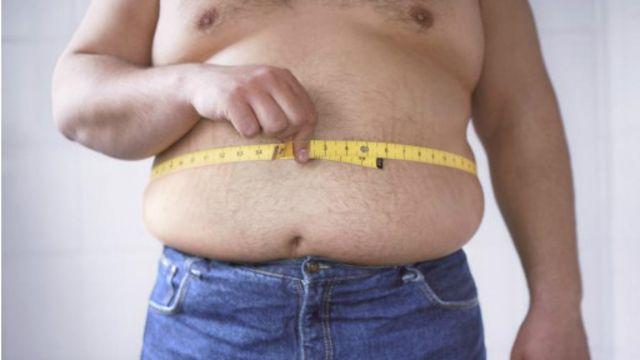 英格兰NHS说,肥胖已经像抽烟一样有损健康和导致超高的医疗费用。