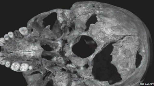 Cráneo de Ricardo III