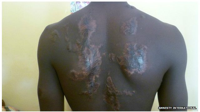 Cet adolescent était soupçonné d'appartenir au groupe de combattants islamistes Boko Haram. On lui a versé du plastique fondu sur le dos en 2013.