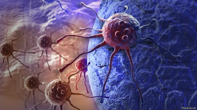 Células cancerígenas (Foto: Thinkstock)