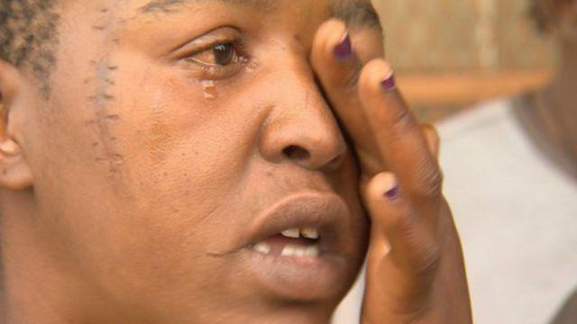 Nomsa est accro au nyaope. Ses larmes coulent quand elle évoque sa famille qui l'a rejetée à cause de son addiction.